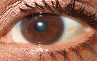 Pterygium with graft (After surgery)